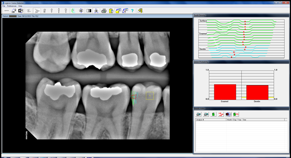 Cavity Detection Software - Red Scan