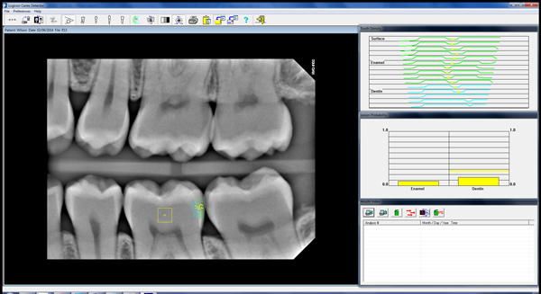 Cavity Scan - Before